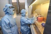 Yêu cầu thực hiện nghiêm báo cáo về cung ứng thuốc phòng chống dịch COVID-19