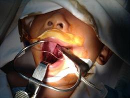 Cứu sống cháu bé bị đũa xuyên đáy sọ