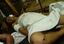 Thêm một học sinh chết trong vụ nổ mìn ở Đắk Nông
