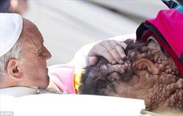 Cảm động giây phút Giáo hoàng ôm hôn 'Người voi'