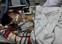 Bắt khẩn cấp đối tượng đánh con 8 tuổi chấn thương sọ não