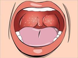 Phát triển phương pháp mới chẩn đoán sớm ung thư vòm họng