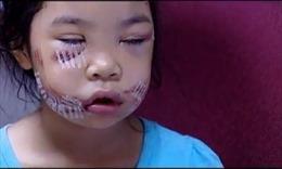 Bị chó cắn nát mặt, bé gái khâu hơn 200 mũi