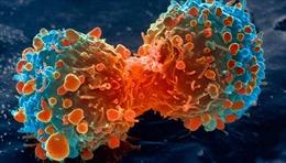 Phát hiện 'thời điểm vàng'ngăn chặn ung thư di căn
