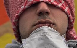 """Khâu mồm phản đối dỡ bỏ """"rừng tị nạn"""" Calais"""