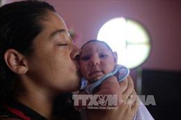 Trẻ sơ sinh đầu tiên ở châu Âu mắc chứng đầu nhỏ do Zika