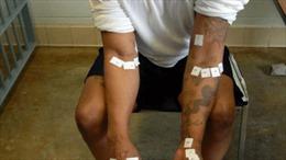 Tử tù bị hành quyết không chết muốn kháng cáo
