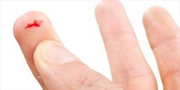 Tại sao giấy cắt vào tay lại đau đến thế?