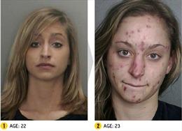 Ám ảnh những khuôn mặt bị tàn phá bởi ma túy