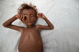 """Ám ảnh những đứa trẻ """"da bọc xương"""" tại vùng chiến sự Yemen"""