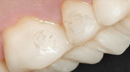 """Rộ mốt 'xăm"""" mặt Tổng thống Putin – Trump lên răng ở Nga"""