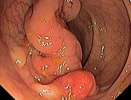 Những triệu chứng ung thư đại trực tràng dễ bị bỏ qua