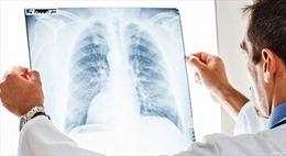 Xét nghiệm máu - hy vọng mới điều trị ung thư phổi hiệu quả hơn