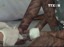 Phát hiện bệnh nhân bị bệnh vảy cá bẩm sinh hiếm gặp