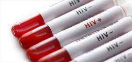 Bắt kẻ trộm chó, một số người có nguy cơ nhiễm HIV