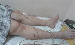 Châm cứu có thể giúp 80% bệnh nhân đột quỵ phục hồi chức năng