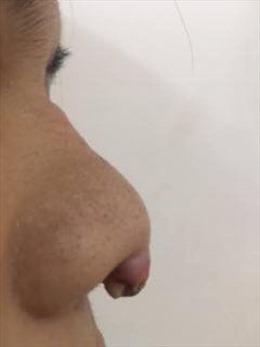 Mũi, mắt, má bị nhiễm trùng nặng vì làm đẹp tại... tiệm làm tóc