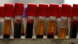 Đột phá - xét nghiệm máu đơn giản phát hiện bệnh tự kỷ ở trẻ em