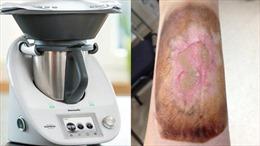 Làm bỏng người tiêu dùng, 'cha đẻ' robot nấu ăn bị phạt hàng triệu USD