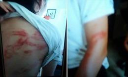 Bố đẻ bạo hành hai con dã man ngay giữa Thủ đô