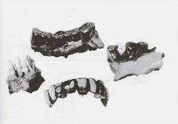 Nữ phiên dịch Nga và hàm răng vàng của Hitler