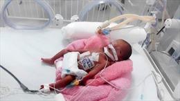 Kỳ tích cứu sống bé gái sinh non chỉ nặng 600 gram