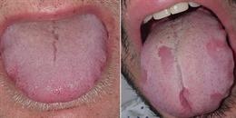 'Covid lưỡi', triệu chứng mới của đại dịch