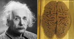 Cái chết của Albert Eistein và hành trình kỳ lạ của bộ não thiên tài