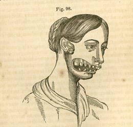 Những cô gái 'hàm phossy' – di chứng chết người của phốt pho trắng