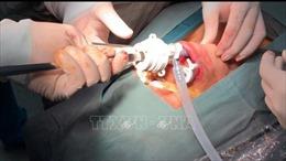 Phẫu thuật nội soi tuyến giáp qua đường miệng không để lại sẹo