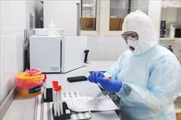Thử nghiệm thuốc favipiravir điều trị bệnh COVID-19 cho kết quả hứa hẹn