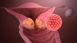 WHO triển khai chiến lược loại bỏ ung thư cổ tử cung