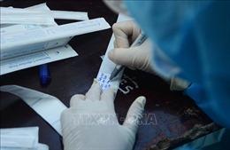 Đà Nẵng xem xét xét nghiệm SARS-CoV-2 cho học sinh thi vào lớp 10