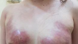 Bơm mỡ nhân tạo ở spa, toàn bộ mô ngực bị thối và hoại tử