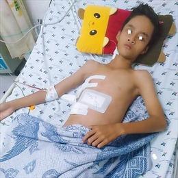 Bé trai 13 tuổi bị thanh sắt đâm xuyên thấu ngực bụng