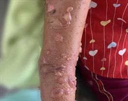 Bé gái 8 tuổi nổi chi chít mụn bóng nước sau khi tắm biển