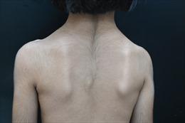 Bé gái 6 tuổi mắc bệnh di truyền hiến gặp, mọc lông rậm toàn thân