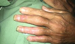 Toàn thân sưng đỏ, khớp biến dạng vì uống thuốc nam điều trị vảy nến