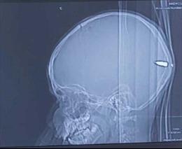 Cứu sống bé trai bị đạn găm vào đầu mà không hay biết