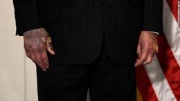 Lãnh đạo Thượng viện Mỹ lên tiếng về sức khỏe sau nghi vấn 'bàn tay thâm tím'