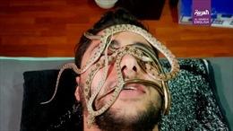 Độc đáo dịch vụ dùng rắn sống massage chữa đau xương, giảm mệt mỏi