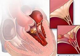 Viêm cơ tim vẫn có thể ngăn ngừa