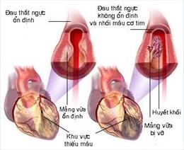 Nguy cơ nhồi máu cơ tim từ những cơn đau thắt ngực