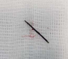 Phẫu thuật lấy chiếc kim khâu dài 17mm gỉ đen trong người bé 3 tuổi