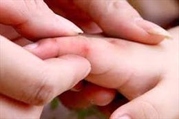 Bệnh tay chân miệng có diễn biến bất thường