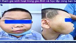 Phẫu thuật thành công ca u xơ vòm họng hiếm gặp ở bệnh nhi