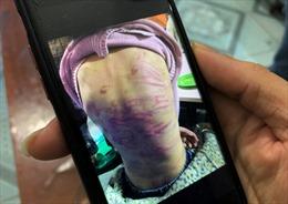 Luật sư lên tiếng vụ bé gái 12 tuổi nghi bị bạo hành và xâm hại tình dục