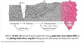 HPV DNA - Xét nghiệm đầu tay trong tầm soát ung thư cổ tử cung