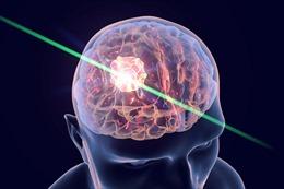 Tia laser giúp bệnh nhân ung thư não kéo dài cuộc sống