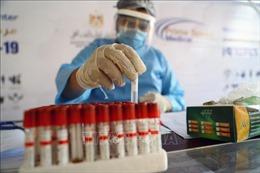 Số ca xét nghiệm COVID-19 tại nhiều nước châu Phi còn rất thấp